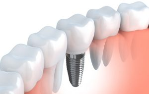 Are Diabetes Patients A Candidate for Dental Implants