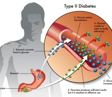 What are the Symptoms and Causes of Diabetes?