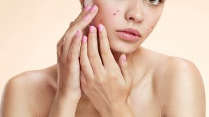 Everything you need to know about acne patches on your skin