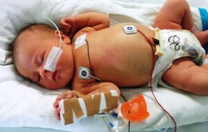 How To Look For The Best Baby Health Insurance Only
