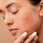 Beat skin breakouts with homeopathy