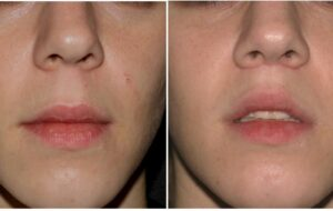 Do You Know About Upper Lip Shortening?