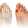 How Can Foot Ulcers Be Treated?