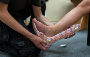 Orthotic Medical Devices – Detailed Explanation About the Topic