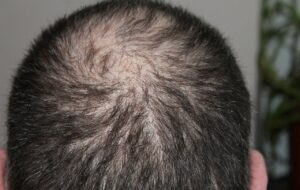 Important reasons for men to lose their hair